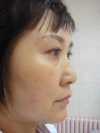 南宁百年吴越_激素脸的治疗方法_激素脸如何治疗_激素脸_淘宝助理
